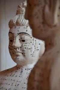 Akupunktur - wo kann Akupunktur helfen