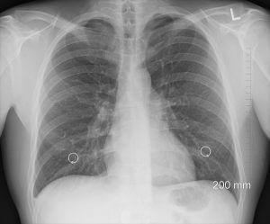 Lungenkrebs-Patienten berichten