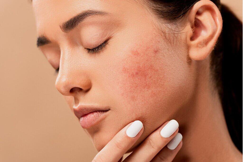Hautkrankheiten - Wie Du einfach Hautkrankheiten selbst diagnostizierst