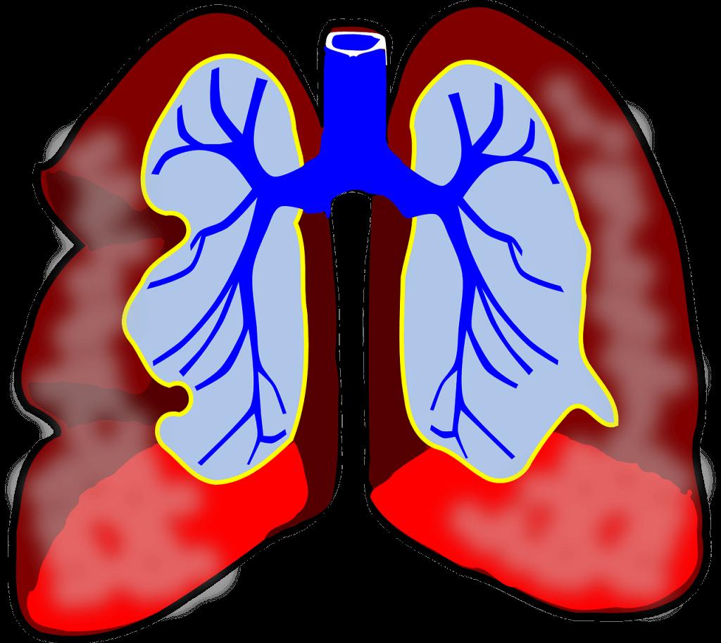 Asthma bei Kindern,Asthma,Asthmatiker,